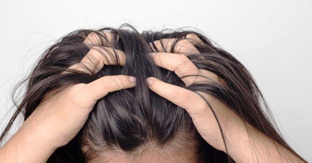 Cara Mencegah Jerawat di Kulit Kepala